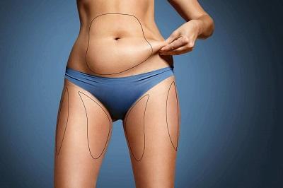 vie apres operation liposuccion